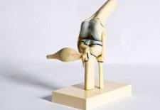 Prävention: Kreuzbandverletzungen vorbeugen