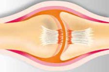 Sportverletzungen: vollständiger Bänderriss