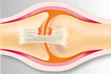 Sportverletzungen: Bänderteilriss